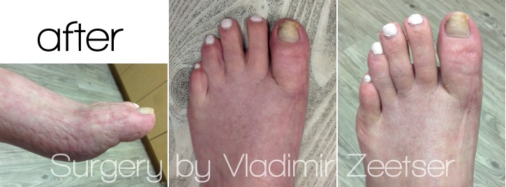 5 Months Postoperative After Hallux Varus