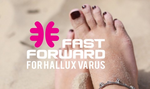 FastForward for Hallux Varus
