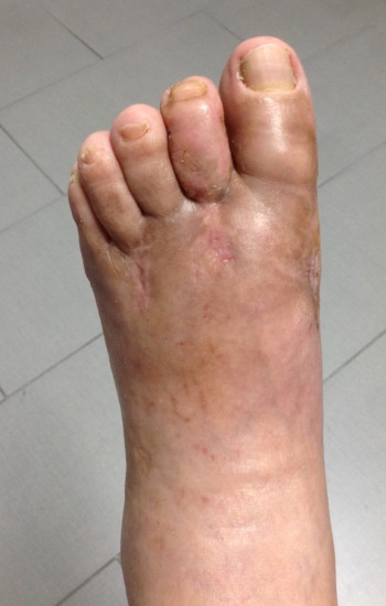 63 year old male before and after FastForward Bunion Corrections System