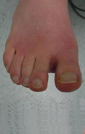 Normal position of the big toe