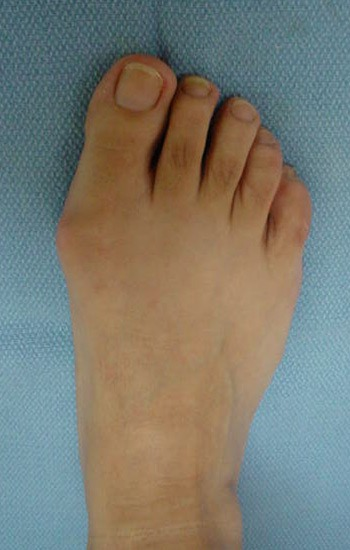 35 year old female with bunion deformity of the right foot