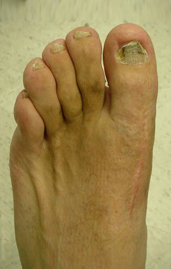 Excellent correction of the deformity using the previous incision on the top of the foot