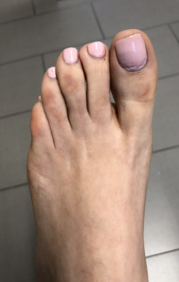 After Toe Shortening Surgery