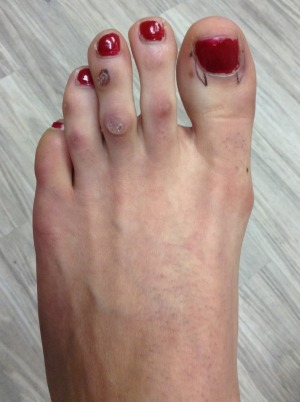 FootFem Before Surgery
