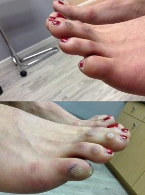 FootFem Before